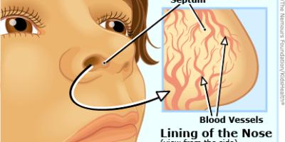La definizione di sangue dal naso sta appena sanguinando dalle arterie del naso. Il termine che ha un'emorragia medica è l'epistassi.