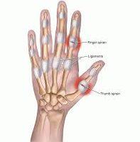 dito slogato è predominante nelle ricreazioni delle lesioni più comuni. Una distorsione è associata ai legamenti trovati nel mignolo. Ogni dito ha tre piccole ossa (falangi) separate da due articolazioni che sono interfalangee. Il pollice è unico e ha un'articolazione che è interfalangea solo t