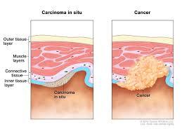 Il carcinoma è un tipo di cancro che inizia nelle cellule che creano la pelle o gli organi del rivestimento tissutale, come i reni o il fegato.