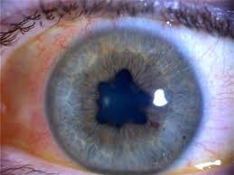 Iritis (i-RYE-this) è un gonfiore che colpisce l'anello colorato che circonda la pupilla dell'occhio (iride). L'iride è una sezione della zona centrale dell'occhio (uvea), quindi l'irite è una specie di uveite, identificata anche come uveite anteriore.