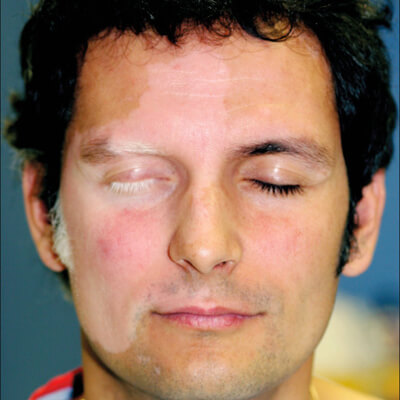 Vitiligo, huidverkleuring
