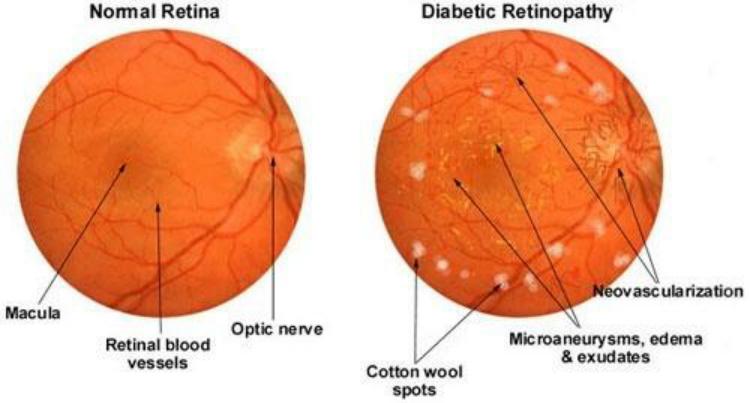 Wazig zicht, Diabetische, Diabetische retinopathie, Diabeties, Fluctuerende visie, Verminderd kleurenbeeld, vitrectomyEdit