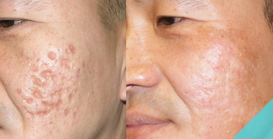 (octylmethyl cinnamaat, acne, acne schrikken, arbutine, beredruif extract, cortisone, hydrochinon, kojiczuur