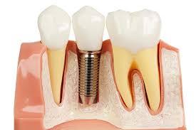 tandheelkundige implantaten. tandimplantaten, tandimplantaten, subperiostaal, endostaal