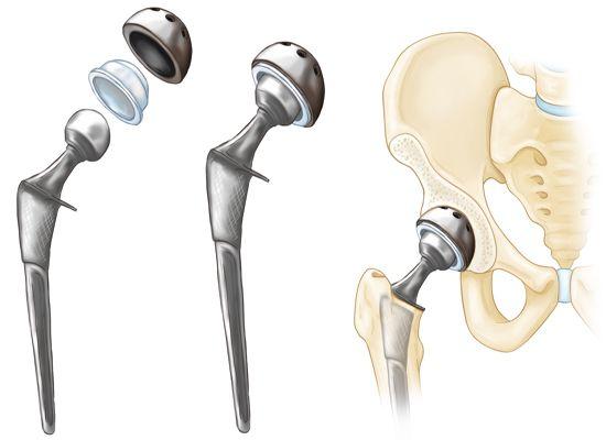 heupprothese, totale heupvervanging, gewrichtspijn, gewrichtsvervanging