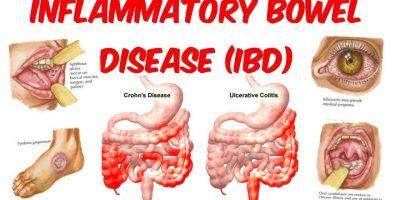 Inflammatory Bowel Disease, IBD, Crohn's disease, Colitis ulcerosa