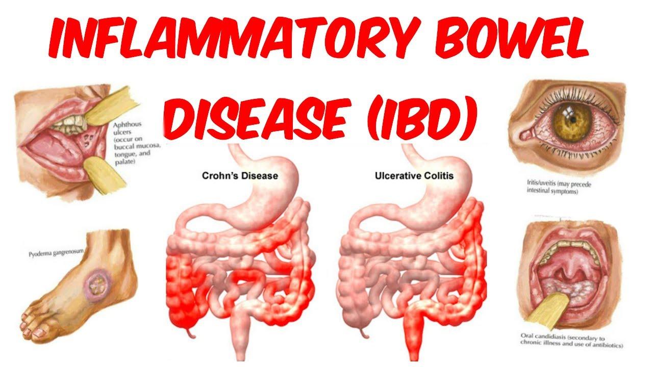 Image result for bowel disease
