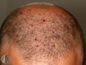 Jeuk Acne, hoofdhuid folliculitis