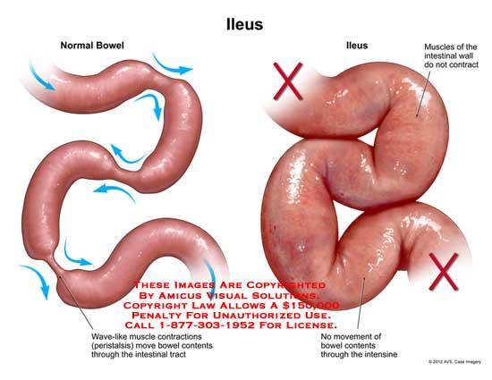 Paralytic ileus, ileus, intestinale blokkering