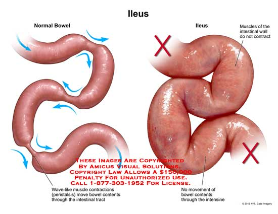 What Is An Ileus  Health Life Media-9973
